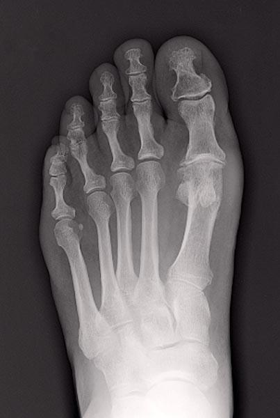 Radio du Dr SIMIAN, chirurgien orthopédique à Périgueux, montrant un hallux rigidus, une arthrose du gros orteil