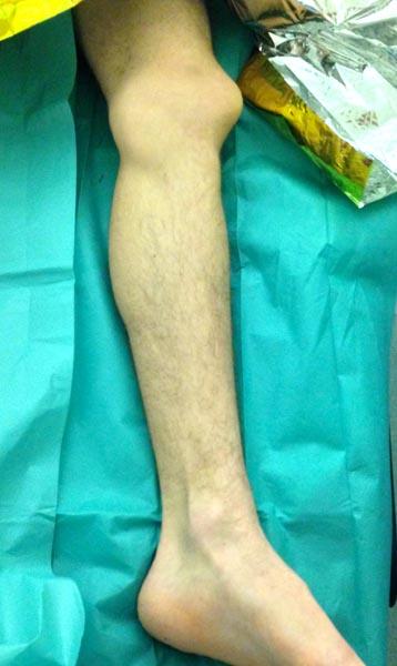 Traumatisme du genou et luxation de la rotule nécessitant un avis d'un chirurgien orthopédiste
