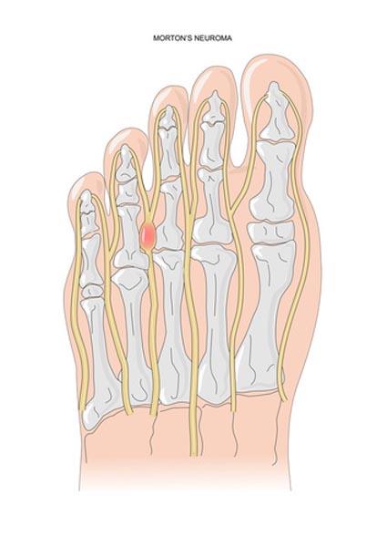 Névrome de Morton nécessitant un avis orthopédique