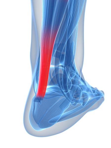 tendinite d'Achille nécessitant un peignage par un chirurgien orthopédique