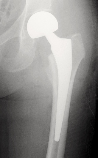 Radio du Dr SIMIAN, chirurgien de la hanche à Périgueux, montrant une prothèse intermédiaire de hanche (PIH)