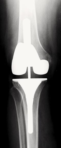 Radio du Dr SIMIAN, chirurgien du genou à Périgueux, montrant une prothèse complexe pour arthrose très évoluée