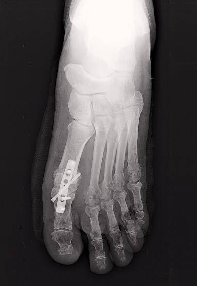 Radio du Dr SIMIAN, chirurgie orthopedique à Périgueux, montrant une arthrodèse du gros orteil pour arthrose