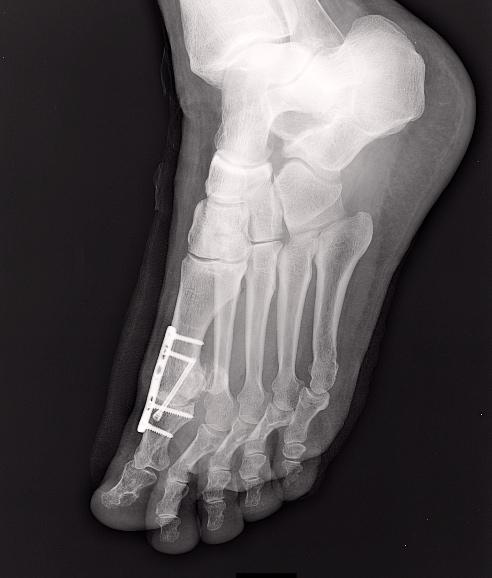 Radio du Dr SIMIAN, chirurgien orthopedie à Périgueux, montrant un hallux rigidus opéré par arthrodèse