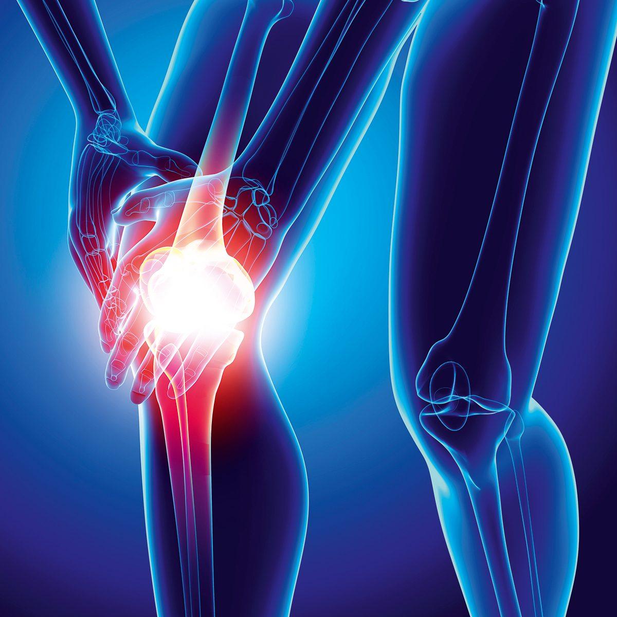 douleurs du genou et arthrose