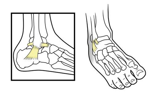 Anatomie des ligaments de la cheville et entorse