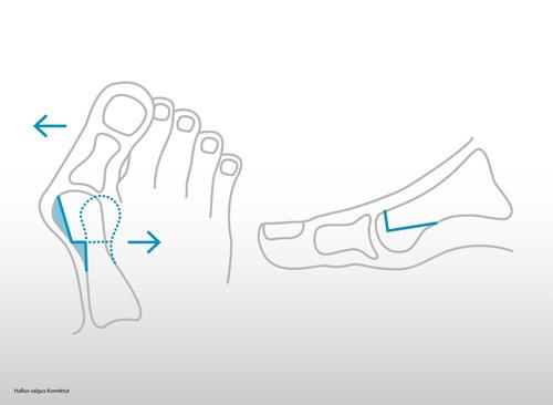Hallux valgus nécessitant une intervention chirurgicale en orthopédie
