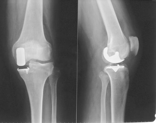 Radio du Dr SIMIAN, chirurgien du genou à Périgueux, montrant une PUC (Prothèse Uni Compartimentale) pour chirurgie de l'arthrose du genou