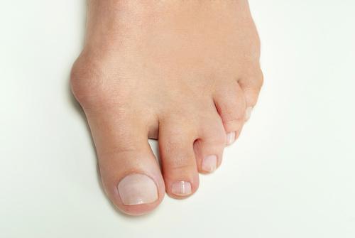 Hallux valgus du pied gauche nécessitant une chirurgie orthopédique