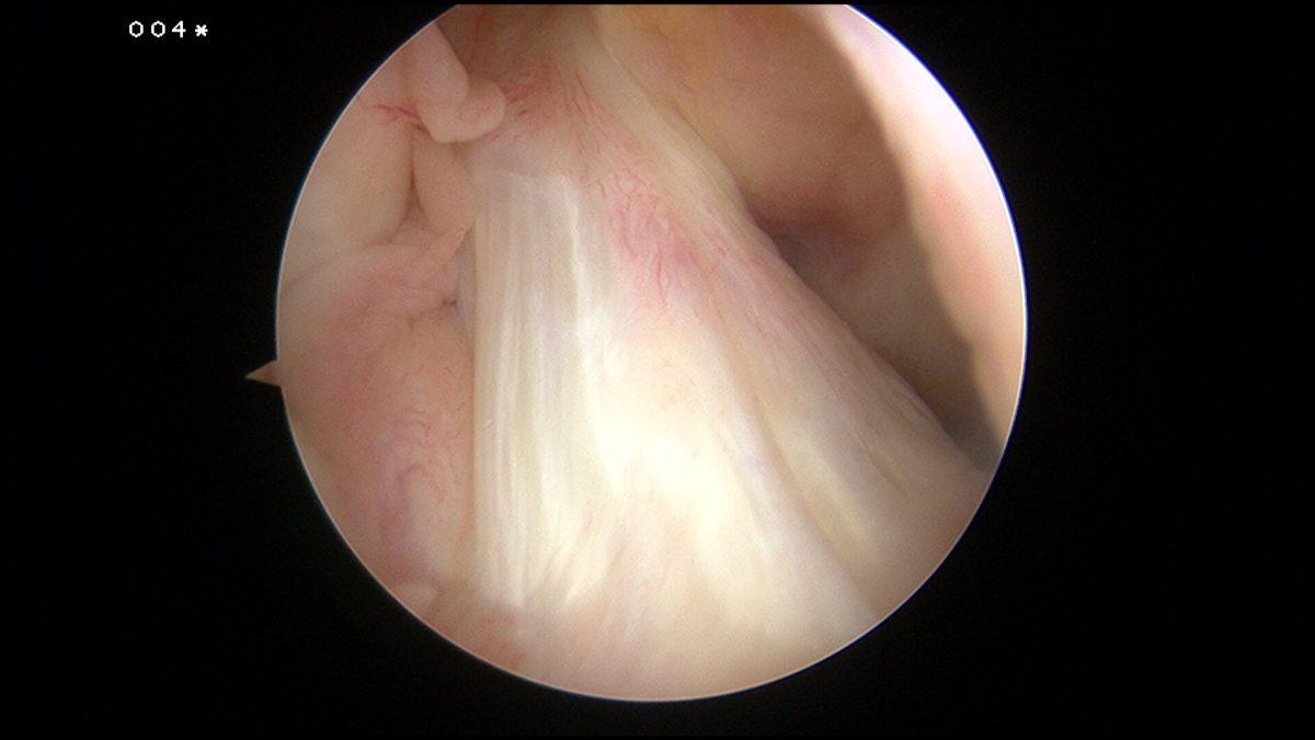 Docteur-SIMIAN-chirurgie-orthopédique-Périgueux-arthroscopie-genou-ligament-croisé-antérieur-1200x675.jpg