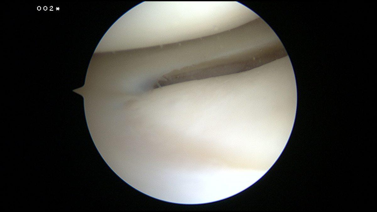 Arthroscopie du Dr SIMIAN, chirurgien du sport à périgueux, montrant le cartilage et le ménisque externe
