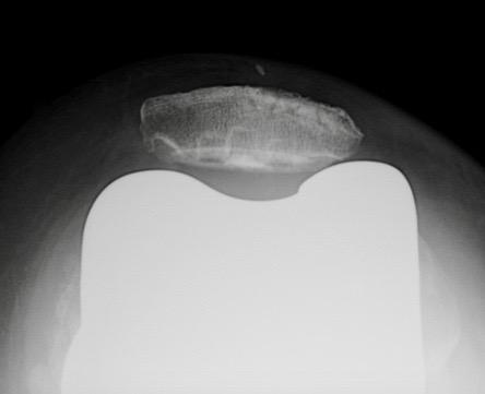 Radio du Dr SIMIAN, chirurgien du genou à Périgueux, PTG révision DFP
