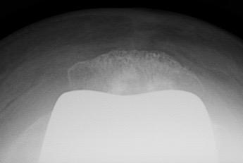 Radio du Docteur SIMIAN, chirurgien du genou à Perigueux, prothse charniere rotule