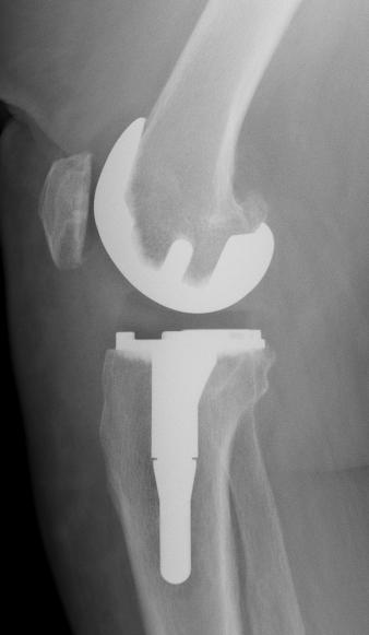 Radio du Dr SIMIAN, chirurgien du genou à Périgueux, ptg quille profil
