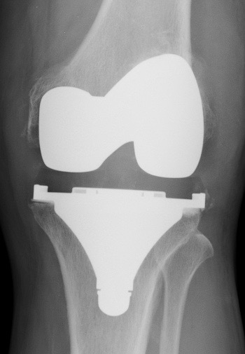 Radio du Dr SIMIAN, chirurgien du genou à Périgueux, PTG face
