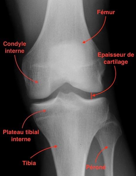 cartilage ménisque arthrose ligament
