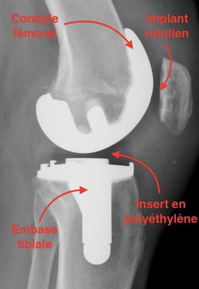Prothese totale du genou pour arthrose
