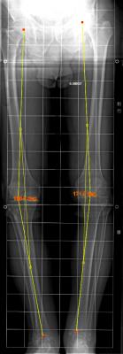 arthrose varus majeur prothese ptg