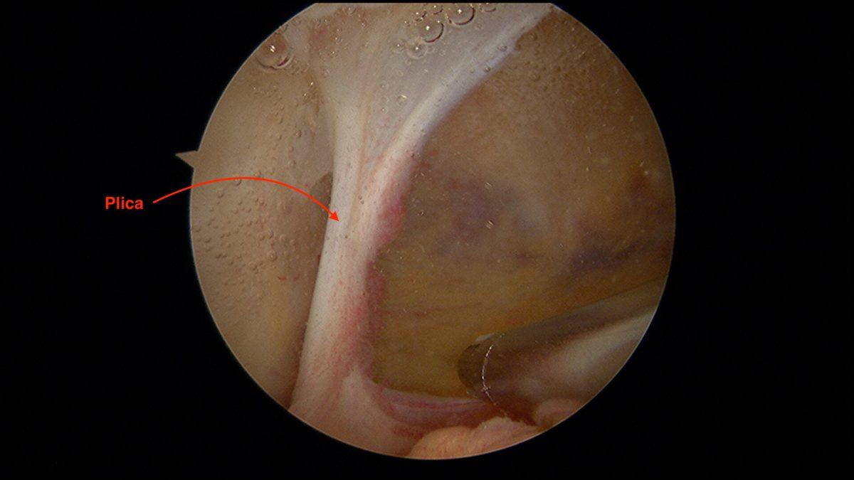 Vue à l'intérieur du genou, plica intra articulaire