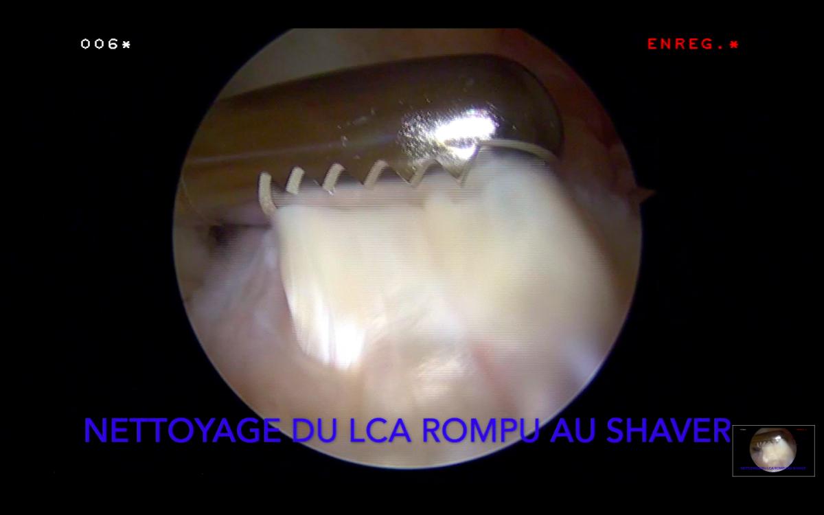 Ligamentoplastie du LCA suite à entorse