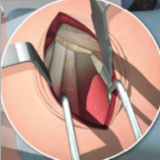 Docteur simian dordogne Prothèse totale de hanche