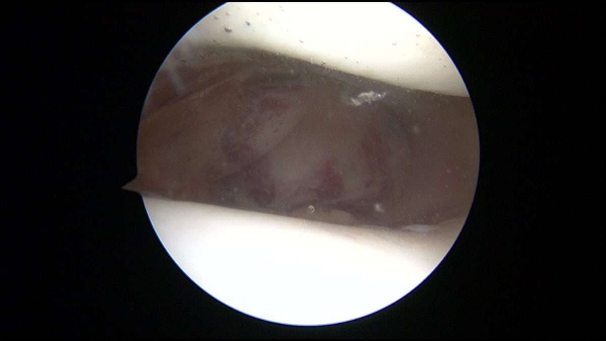 Image tirée d'une vidéo d'une arthroscopie du genou avec cartilage sain