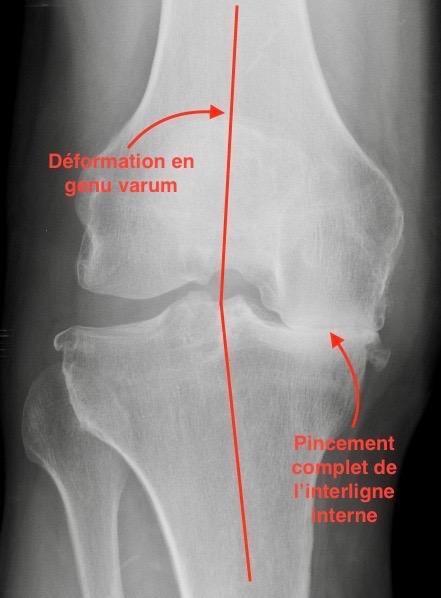arthrose très évoluée fémoro-tibiale nécessitant une PTG