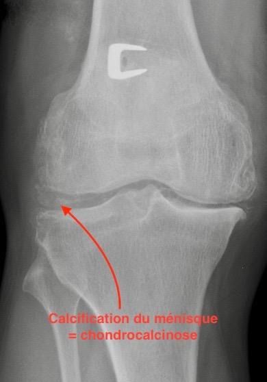 Chondrocalcinose du genou avec calcification du ménisque