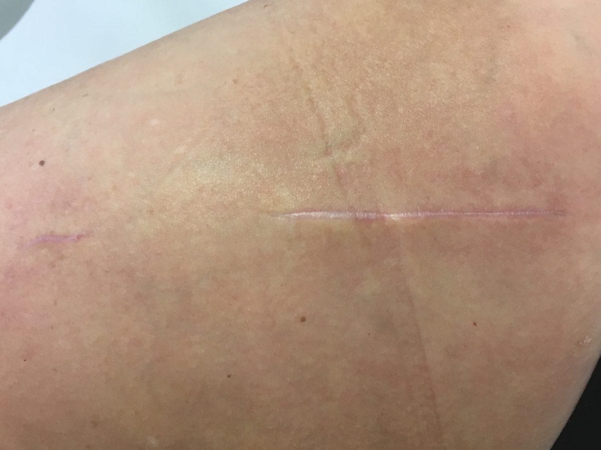 Disparition quasi complète de la cicatrice après prothèse mini-invasive PTH Superpath