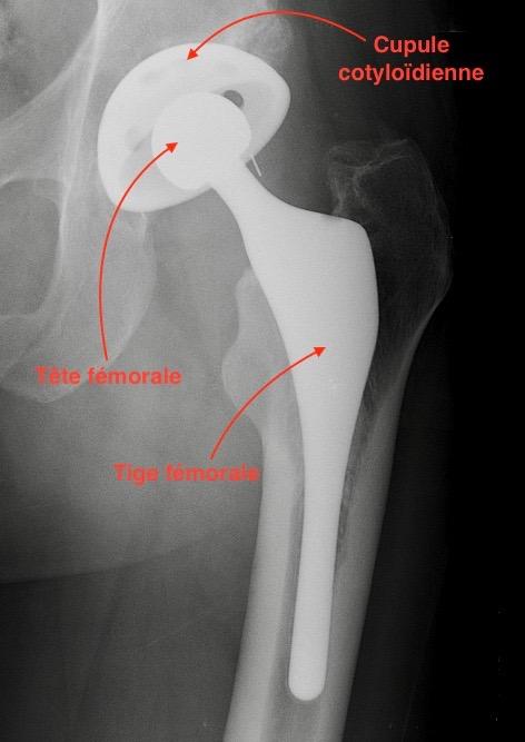 Informations sur la prothèse de hanche