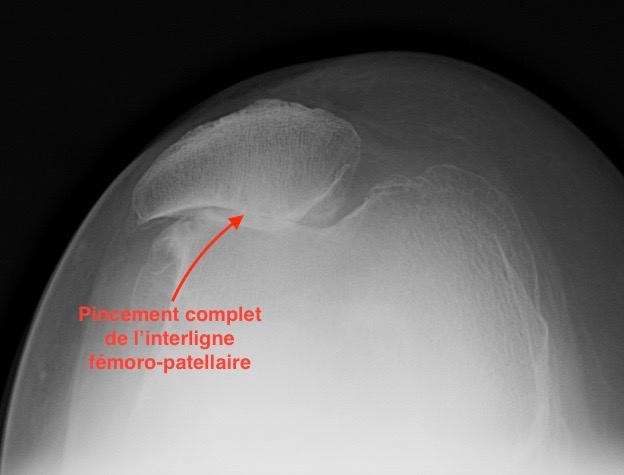 genou vu du dessus avec usure du cartilage évoluée