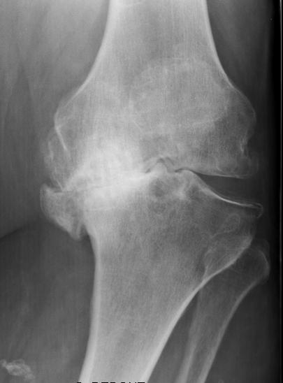 Grande usure du cartilage du genou