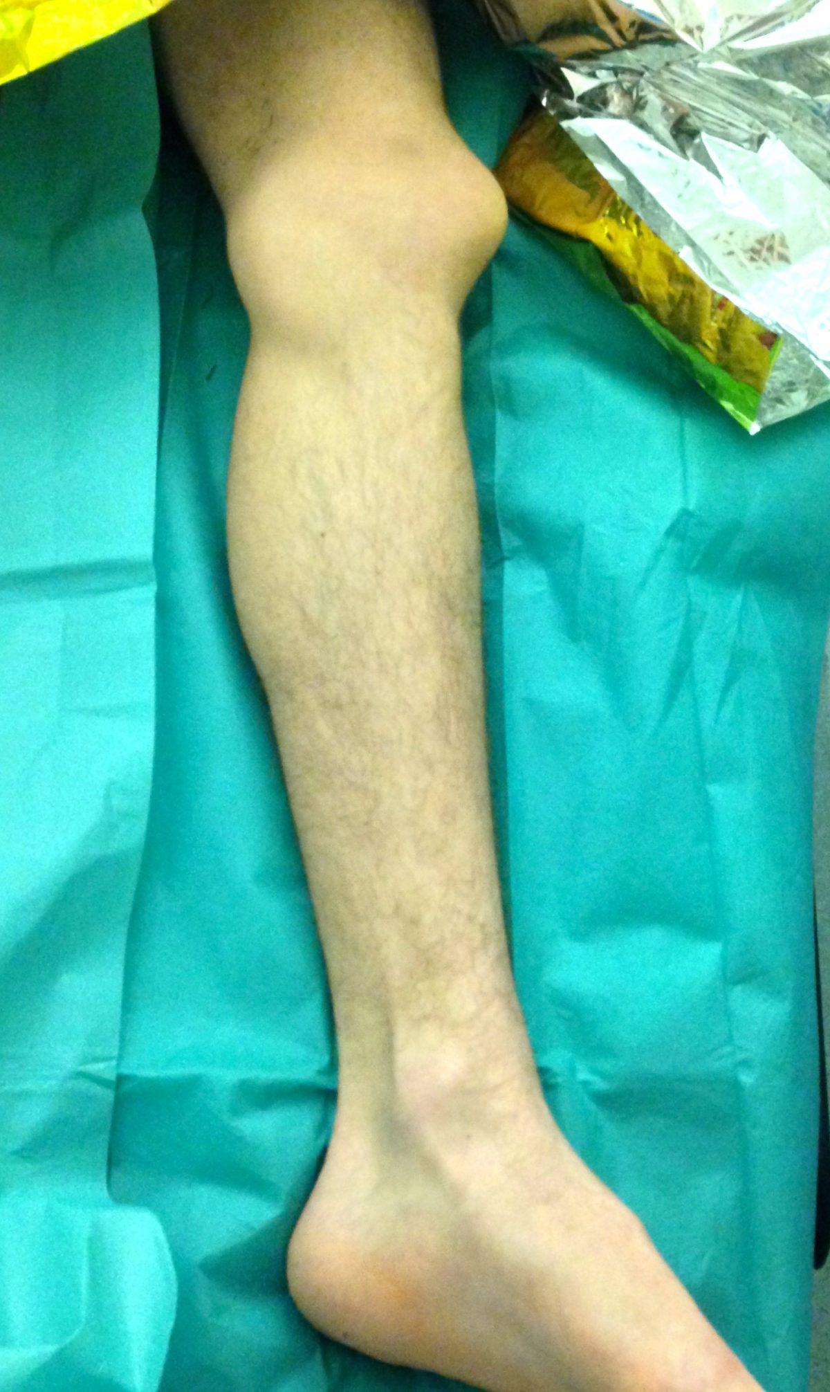 le genou est déformé car la rotule s'est déboité