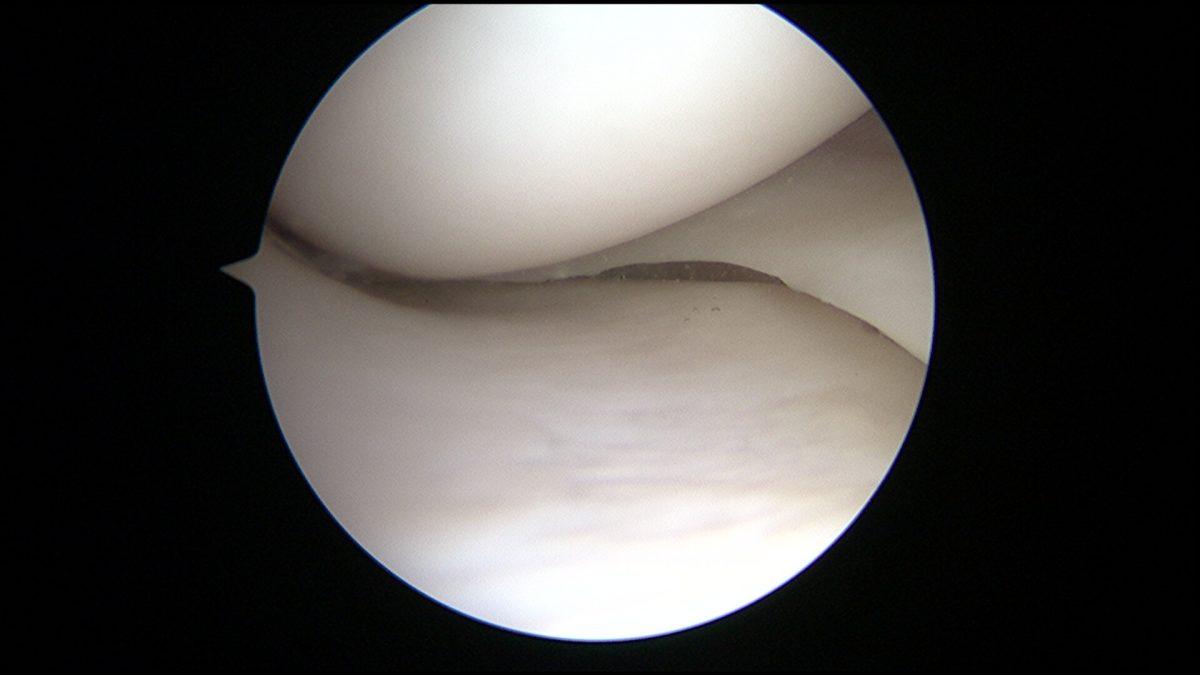 vue de l'intérieur du genou avec cartilage normal