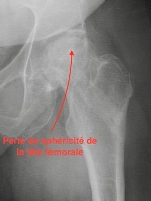 Radio de la hanche avec ostéonécrose nécessitant prothèse