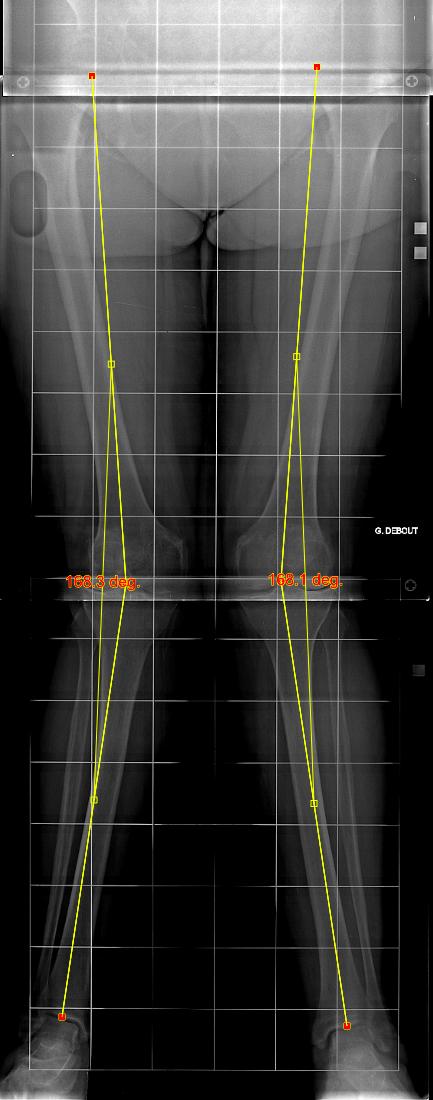 Grands axes des membres inférieurs avec jambes en X