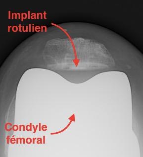 Radio d'une prothèse de genou posée par le Dr Simian vue du dessus