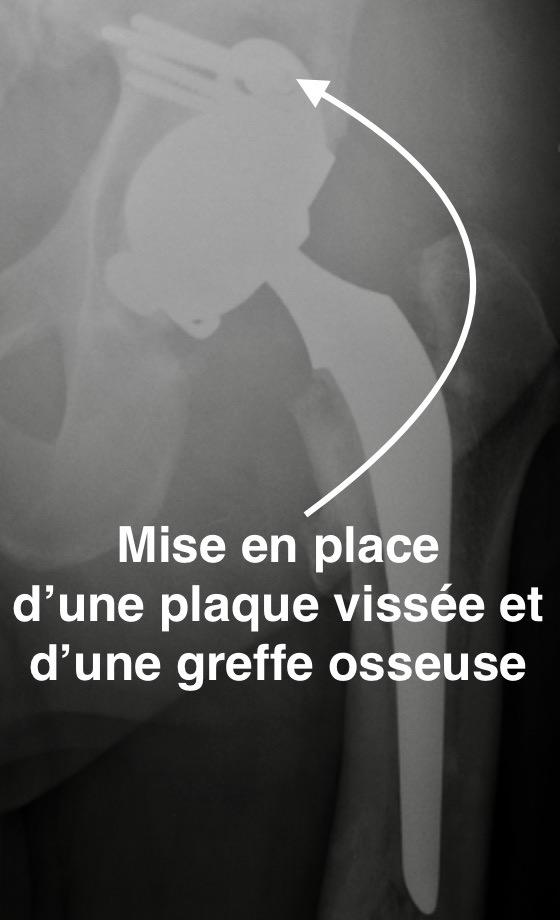 changement de prothèse totale de hanche par le docteur Simian à Périgueux Dordogne