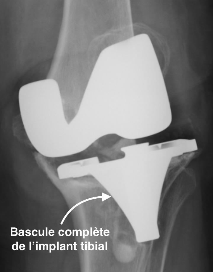 usure importante d'une prothèse du genou avec bascule de l'implant tibial