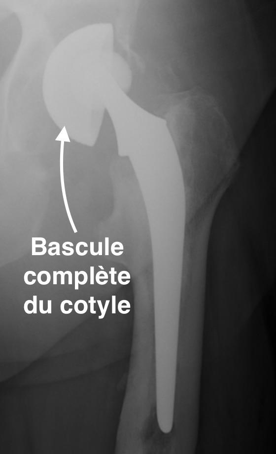 descellement d'une prothèse totale de hanche