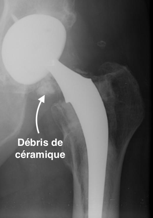 fracture de céramique d'une prothèse de hanche