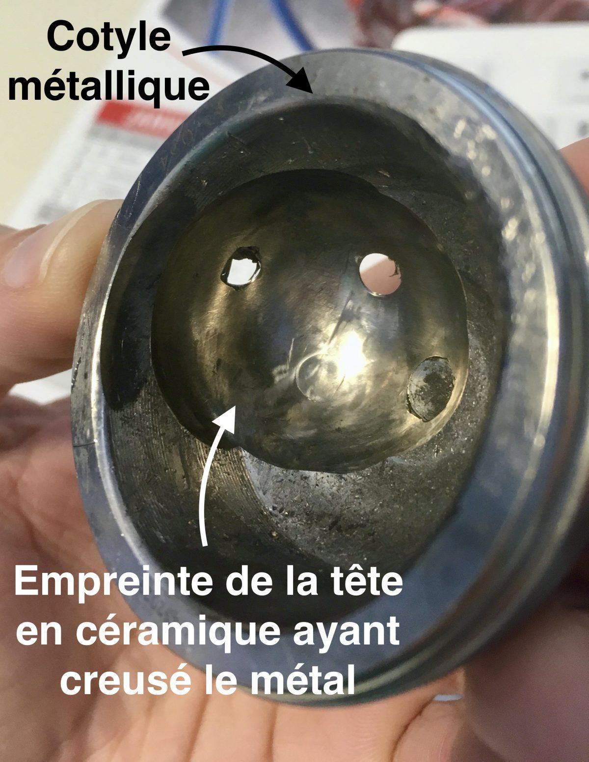 cotyle d'une prothèse de hanche avec empreinte de la tête suite à une fracture de céramique