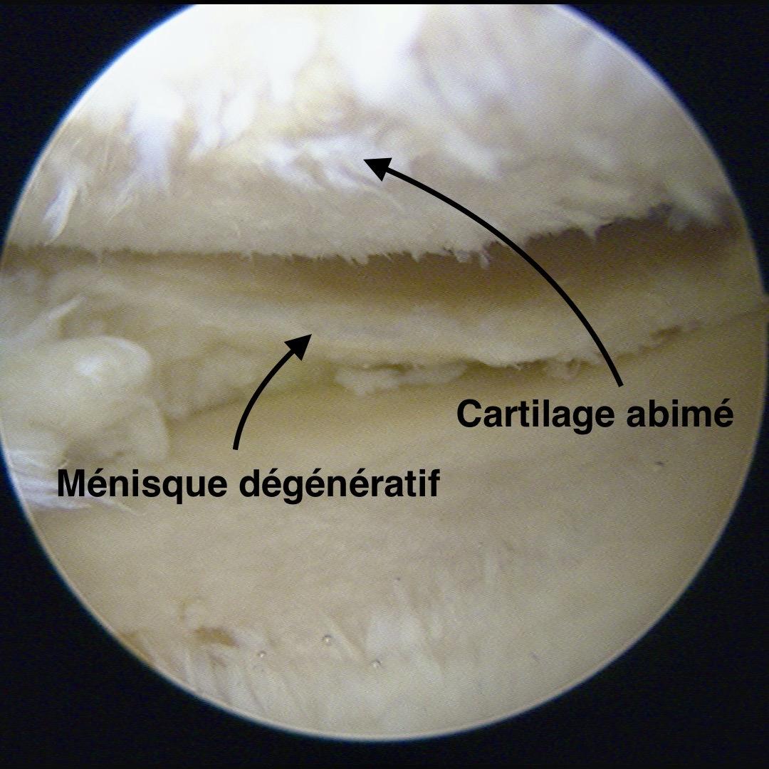 Ménisque dégénératif lors d'une arthroscopie à Périgueux
