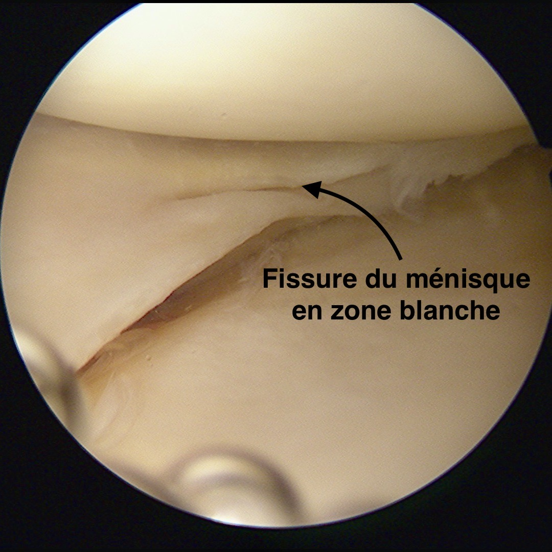 Fissure du ménisque en zone blanche non suturable par Dr SIMIAN