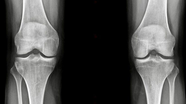 Dr SIMIAN specialiste du genou perigueux